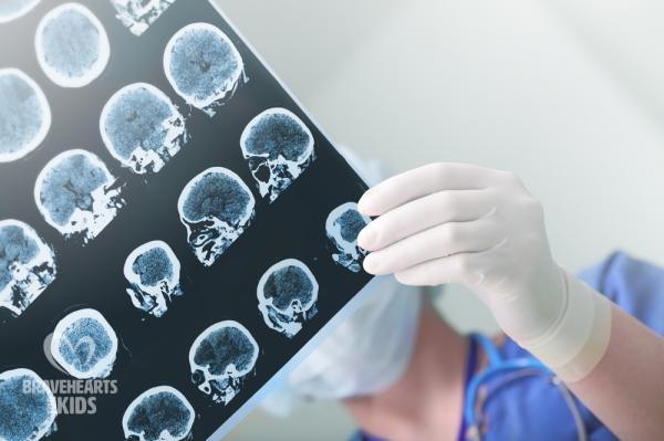 Precision medicine can be used to treat pediatric brain cancer: Study